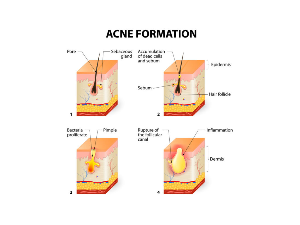 post_0091_image__0004_acne-formation