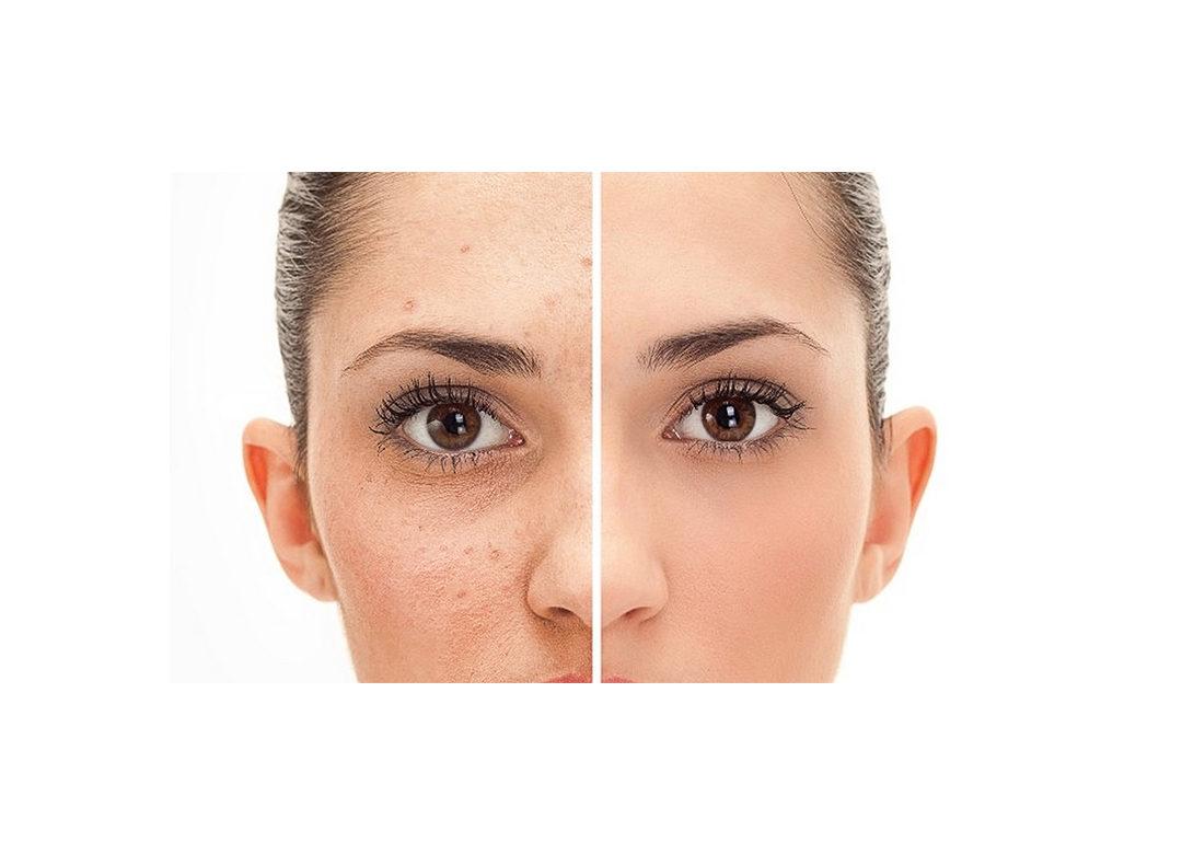 Fierybread Thuy Vo Acne Scar Cause and Treatment Nguyên nhân giải pháp điều trị sẹo mụn